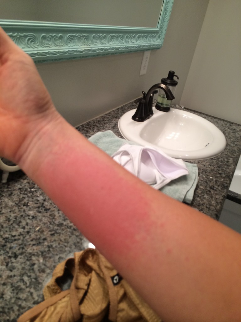 beginning of rash on arm