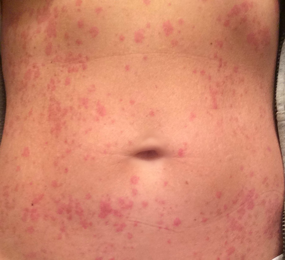 rash on stomach
